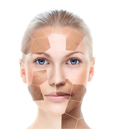 Microdermabrasion, facials, hyperpigmentation,treatment,pigmentation,hyperpigmentation treatment,treat,pigment,treat hyperpigmentation,treat pigmentation,treatments,pigmentation treatments,pigmentation removal,removal,hyperpigmentation treatments