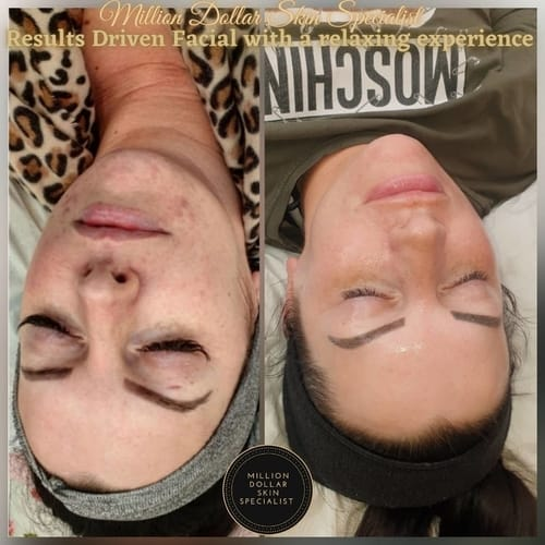 Sophie Pearce Million Dollar Facial, Skin specialist Mirfield